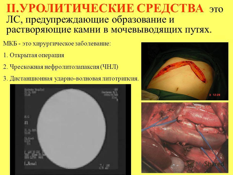 II.УРОЛИТИЧЕСКИЕ СРЕДСТВА это ЛС, предупреждающие образование и растворяющие камни в мочевыводящих путях. МКБ - это хирургическое заболевание: 1. Открытая операция 2. Чрескожная нефролитолапаксия (ЧНЛ) 3. Дистанционная ударно-волновая литотрипсия.