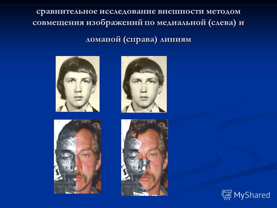 сравнительное исследование внешности методом совмещения изображений по медиальной (слева) и ломаной (справа) линиям