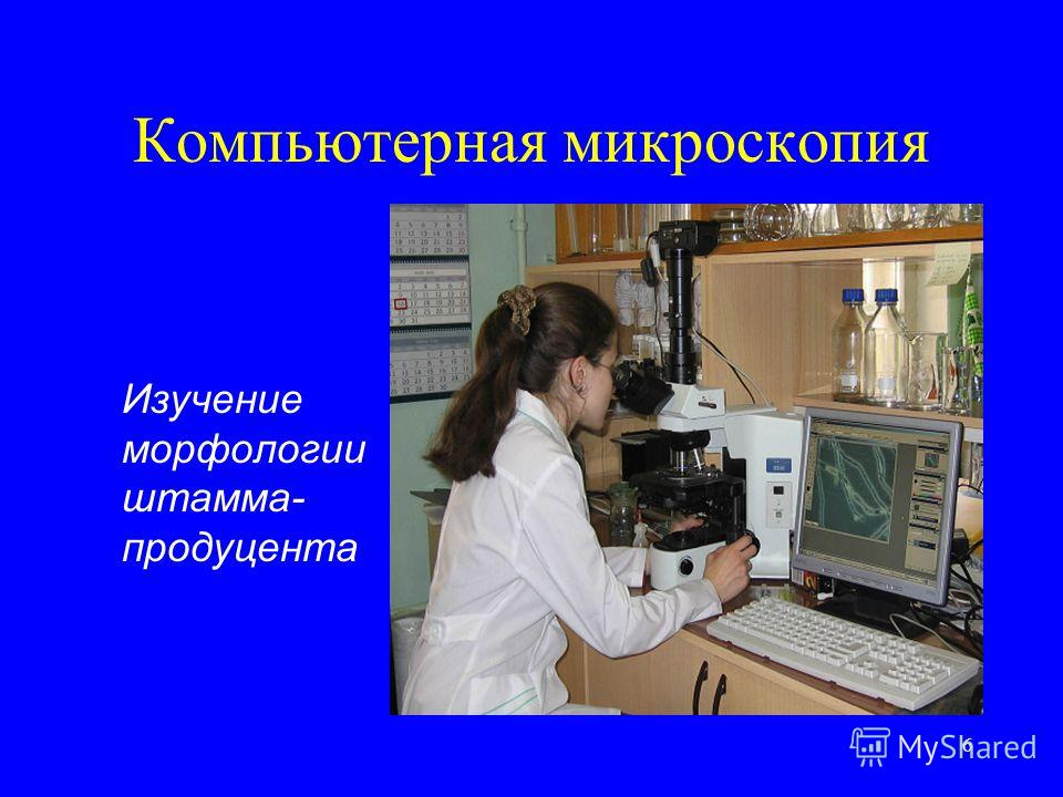 6 Компьютерная микроскопия Изучение морфологии штамма- продуцента