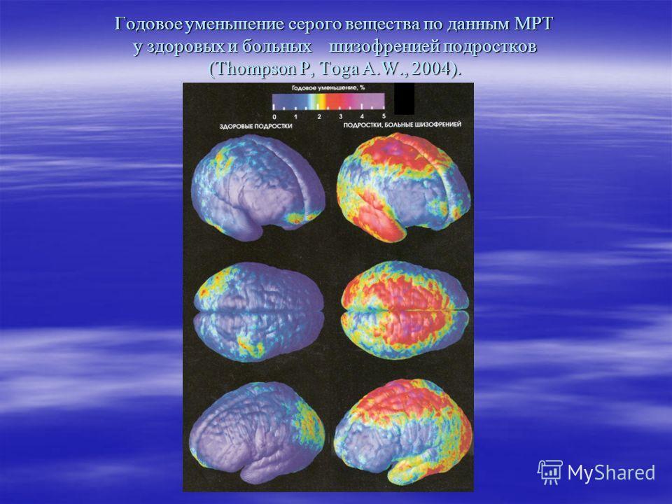 Годовое уменьшение серого вещества по данным МРТ у здоровых и больных шизофренией подростков (Thompson P, Toga A.W., 2004).
