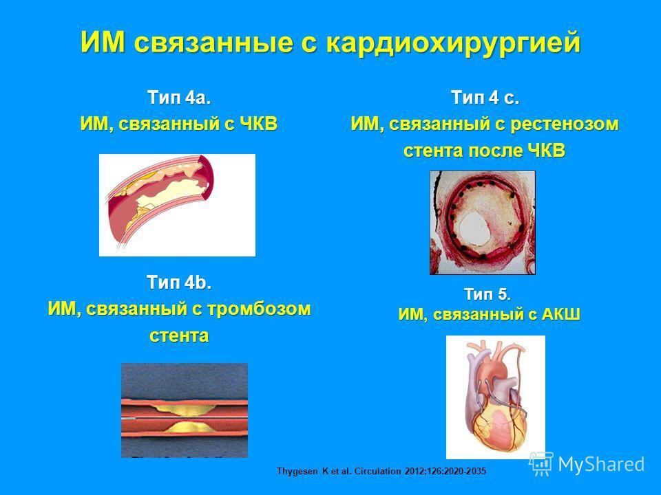 ИМ связанные с кардиохирургией Тип 4а. ИМ, связанный с ЧКВ Тип 4b. ИМ, связанный с тромбозом стента Тип 4 с. ИМ, связанный с рестенозом стента после ЧКВ Тип 5. ИМ, связанный с АКШ Thygesen K et al. Circulation 2012;126:2020-2035