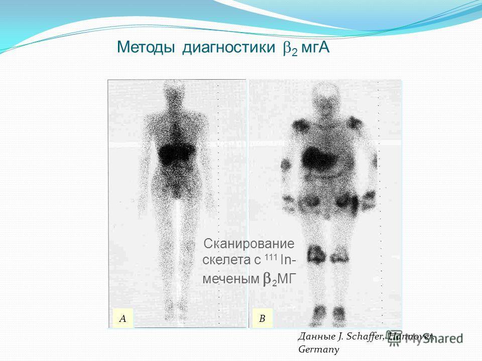 Данные J. Schaffer, Hannover, Germany A A B B Методы диагностики 2 мгА Сканирование скелета с 111 In- меченым 2 МГ