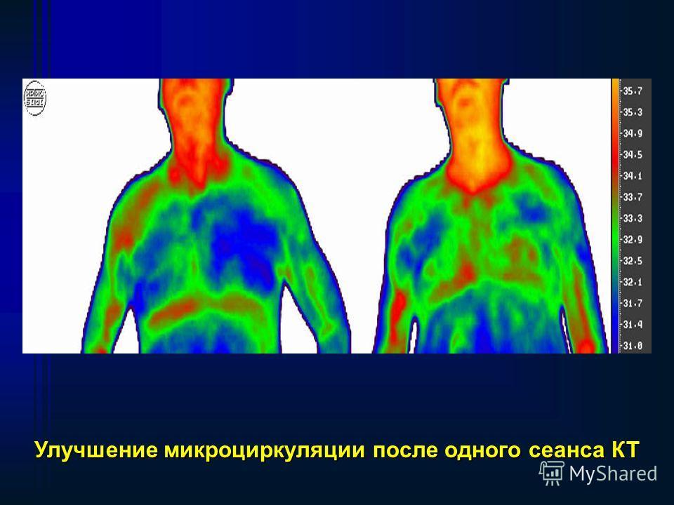 Воздействие квантового излучения (КИ) на кровь у больных острым инфарктом миокарда (ОИМ) в первые 6 часов развития, стабилизирует и даже сокращает инфарктную зону. Выраженный эффект КТ отмечен у больных ИБС с желудочковыми экстрасистолы типа «залповы