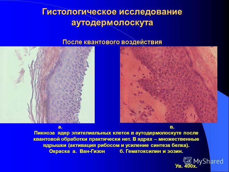 а. б. Пикноз ядер эпителиальных клеток в аутодермолоскуте до квантовой обработки, обусловленный травмой. Окраска а. Ван-Гизон б. Гематоксилин и эозин. Ув. 400х. Гистологическое исследование аутодермолоскута до квантового воздействия