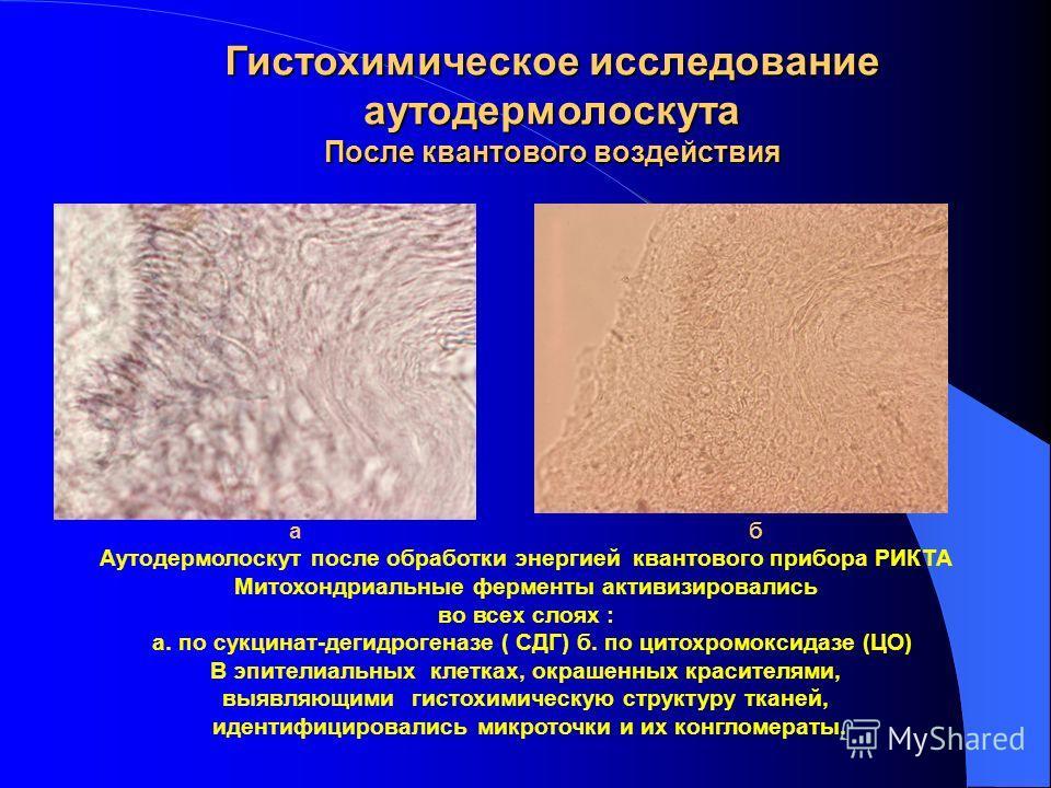 а б Аутодермолоскут до обработки энергией квантового прибора РИКТА. Отсутствие какой-либо активности митохондриальных ферментов во всех слоях а. по сукцинат-дегидрогеназе ( СДГ) б. по цитохромоксидазе (ЦО) В эпителиальных клетках, окрашенных красител