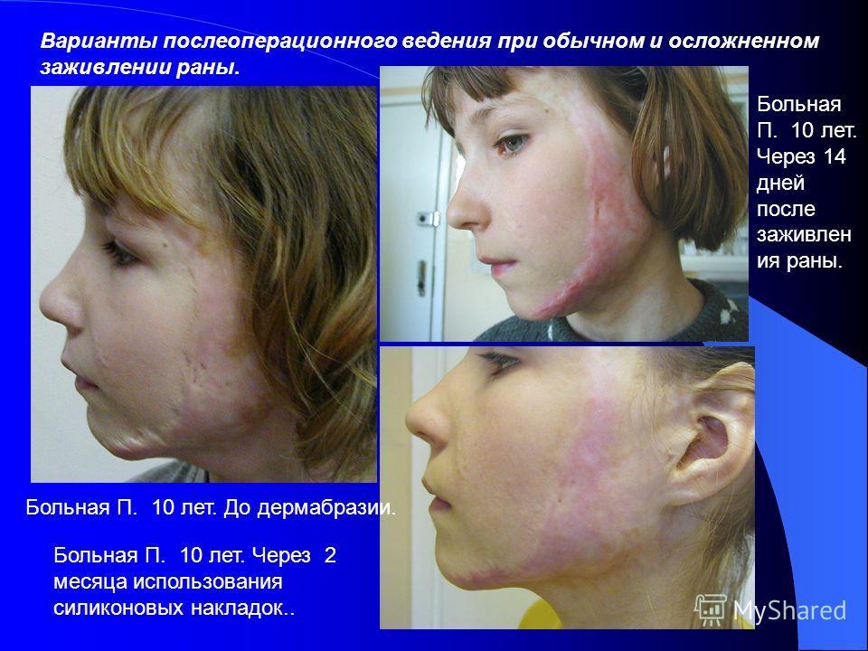 Больной Д. 12 лет. В день обращения Тот же больной, снимок с поворотом головы в ¾ Рис. Больной Д. 12 лет. Через 14 дней после дермабразии. Тот же больной вид слева.