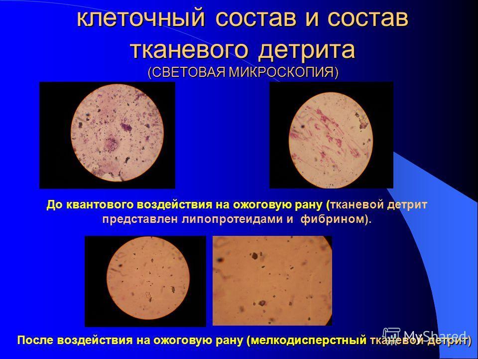 При лечении неглубоких ран II-IIIa степени изучали клеточный состав и состав тканевого детрита методом световой и электронной микроскопии. В отпечатках, взятых с поверхности вялогранулирующих ран обнаружено: Большее количество клеточных элементов в с