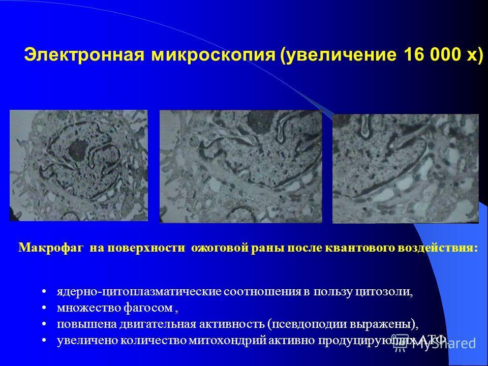 Макрофаг на поверхности раны до квантового воздействия: псевдоподии не выражены, ядерно-цитоплазматические соотношения в пользу ядерного вещества, отсутствуют фагосомы, не выражена активность митохондрий Электронная микроскопия (увеличение 16 000 х)
