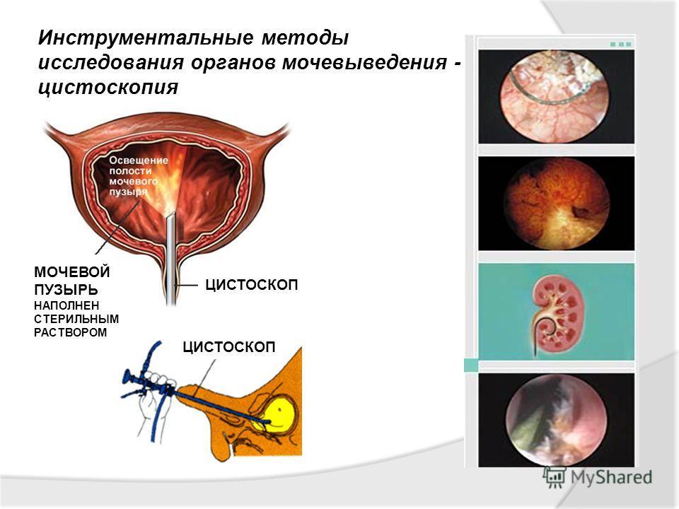 Инструментальные методы исследования органов мочевыведения - цистоскопия МОЧЕВОЙ ПУЗЫРЬ НАПОЛНЕН СТЕРИЛЬНЫМ РАСТВОРОМ ЦИСТОСКОП
