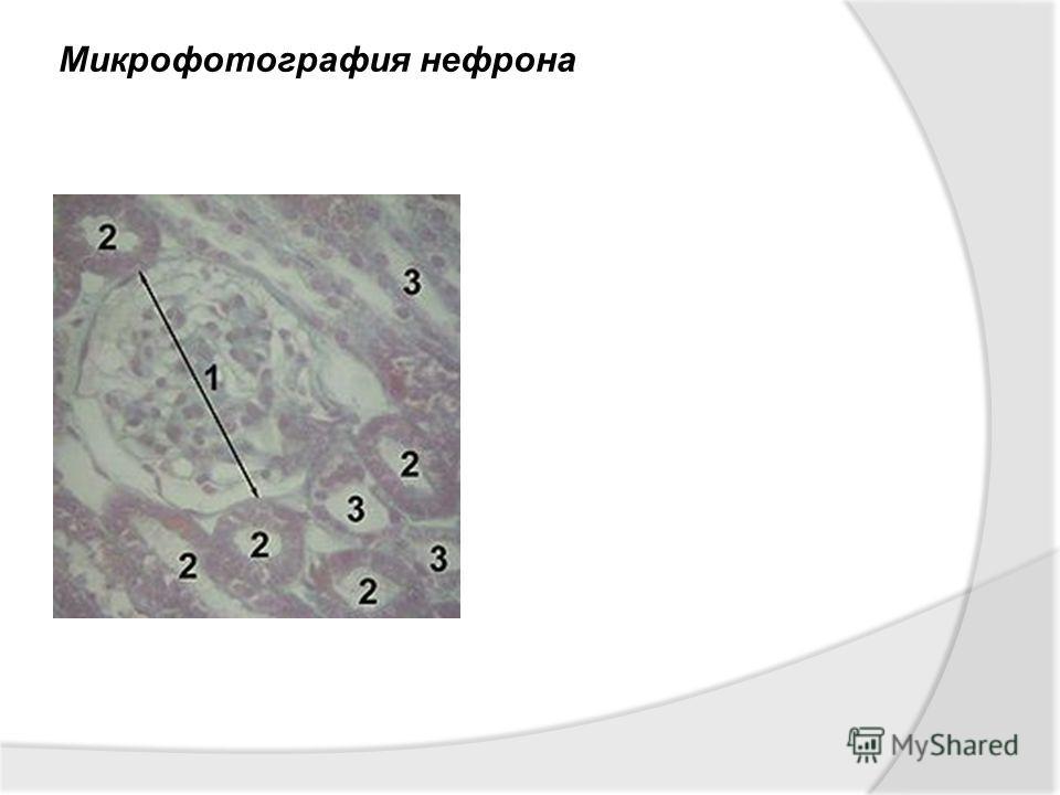Микрофотография нефрона