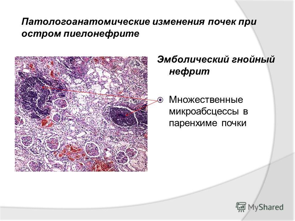 Эмболический гнойный нефрит Множественные микроабсцессы в паренхиме почки