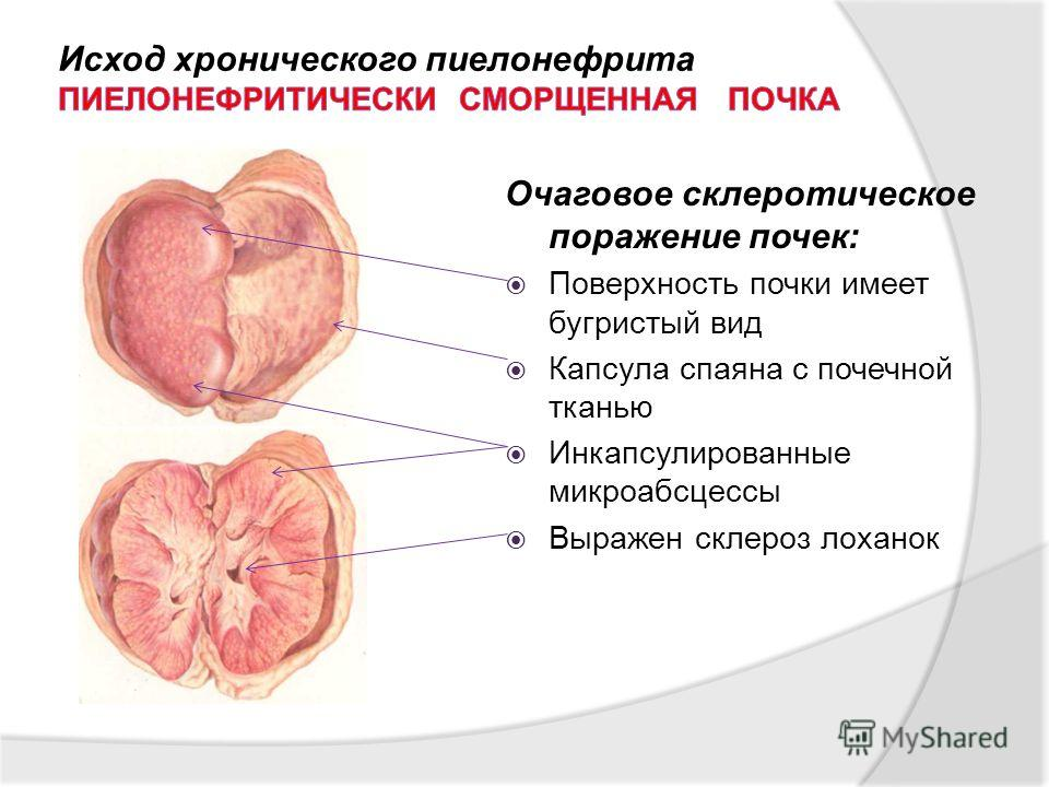 Очаговое склеротическое поражение почек: Поверхность почки имеет бугристый вид Капсула спаяна с почечной тканью Инкапсулированные микроабсцессы Выражен склероз лоханок