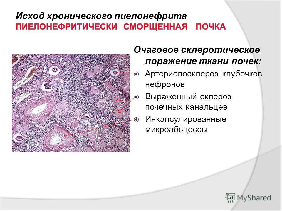 Очаговое склеротическое поражение ткани почек: Артериолосклероз клубочков нефронов Выраженный склероз почечных канальцев Инкапсулированные микроабсцессы