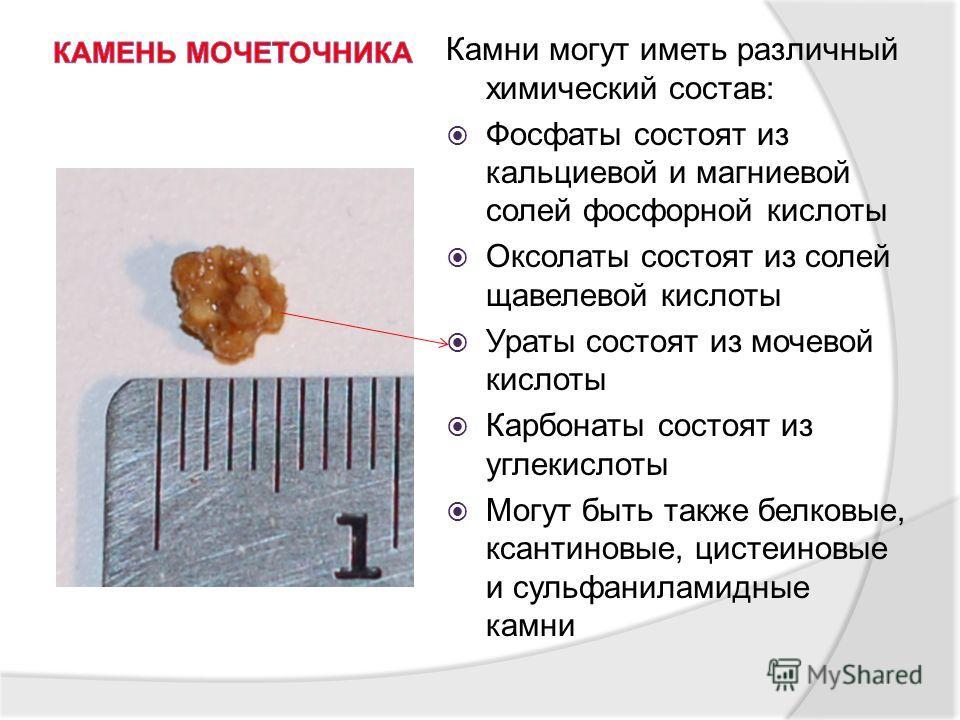 Камни могут иметь различный химический состав: Фосфаты состоят из кальциевой и магниевой солей фосфорной кислоты Оксолаты состоят из солей щавелевой кислоты Ураты состоят из мочевой кислоты Карбонаты состоят из углекислоты Могут быть также белковые,