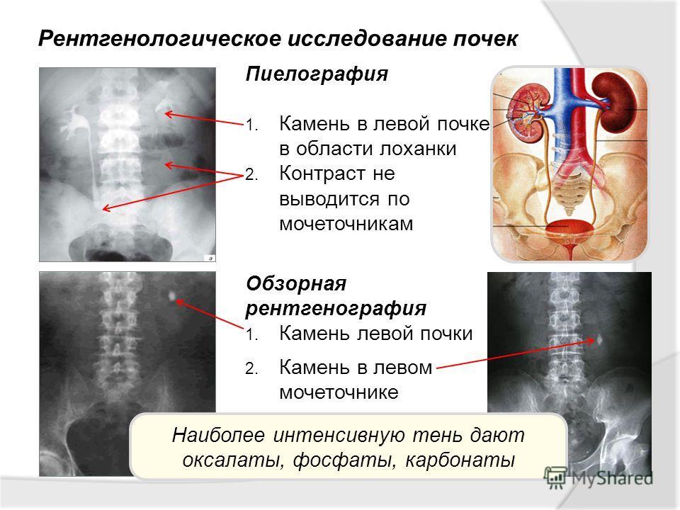 Рентгенологическое исследование почек Пиелография 1. Камень в левой почке в области лоханки 2. Контраст не выводится по мочеточникам Обзорная рентгенография 1. Камень левой почки 2. Камень в левом мочеточнике Наиболее интенсивную тень дают оксалаты,