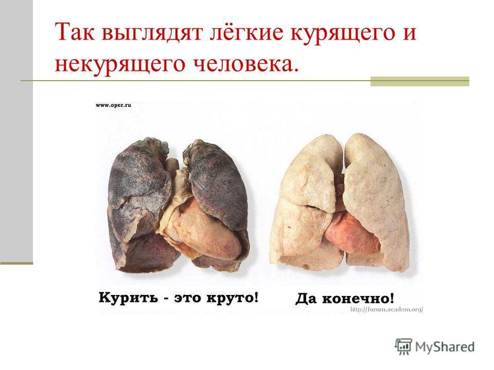 Так выглядят лёгкие курящего и некурящего человека.