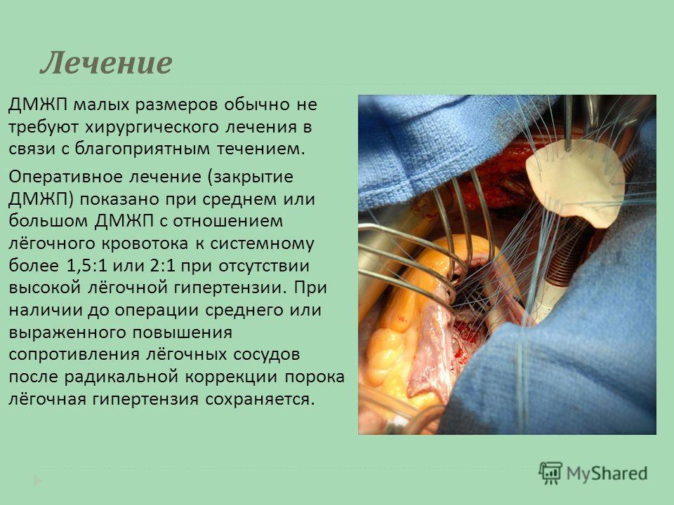 Лечение ДМЖП малых размеров обычно не требуют хирургического лечения в связи с благоприятным течением. Оперативное лечение ( закрытие ДМЖП ) показано при среднем или большом ДМЖП с отношением лёгочного кровотока к системному более 1,5:1 или 2:1 при о