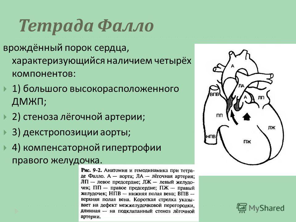 Тетрада Фалло врождённый порок сердца, характеризующийся наличием четырёх компонентов : 1) большого высокорасположенного ДМЖП ; 2) стеноза лёгочной артерии ; 3) декстропозиции аорты ; 4) компенсаторной гипертрофии правого желудочка.
