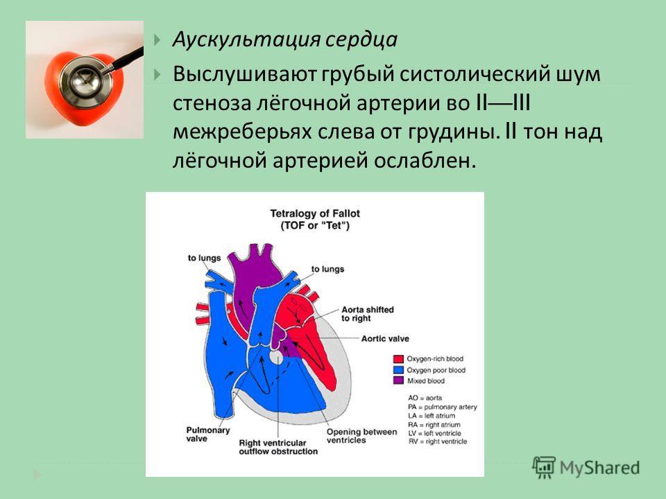 Аускультация сердца Выслушивают грубый систолический шум стеноза лёгочной артерии во IIIII межреберьях слева от грудины. II тон над лёгочной артерией ослаблен.
