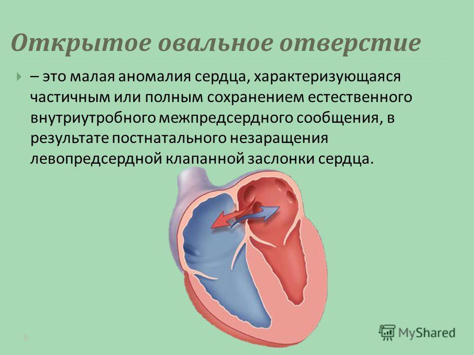 Открытое овальное отверстие – это малая аномалия сердца, характеризующаяся частичным или полным сохранением естественного внутриутробного межпредсердного сообщения, в результате постнатального незаращения левопредсердной клапанной заслонки сердца.
