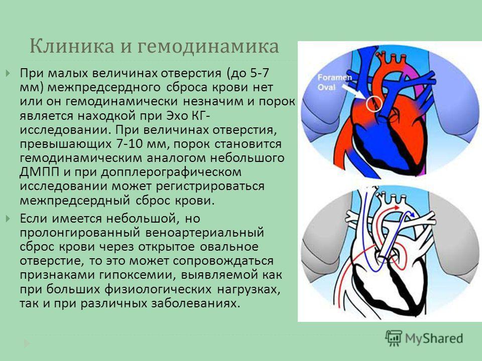 Клиника и гемодинамика При малых величинах отверстия ( до 5-7 мм ) межпредсердного сброса крови нет или он гемодинамически незначим и порок является находкой при Эхо КГ - исследовании. При величинах отверстия, превышающих 7-10 мм, порок становится ге