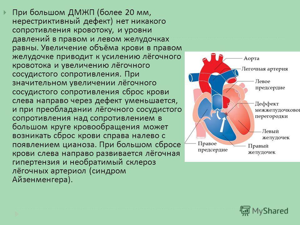При большом ДМЖП ( более 20 мм, нерестриктивный дефект ) нет никакого сопротивления кровотоку, и уровни давлений в правом и левом желудочках равны. Увеличение объёма крови в правом желудочке приводит к усилению лёгочного кровотока и увеличению лёгочн