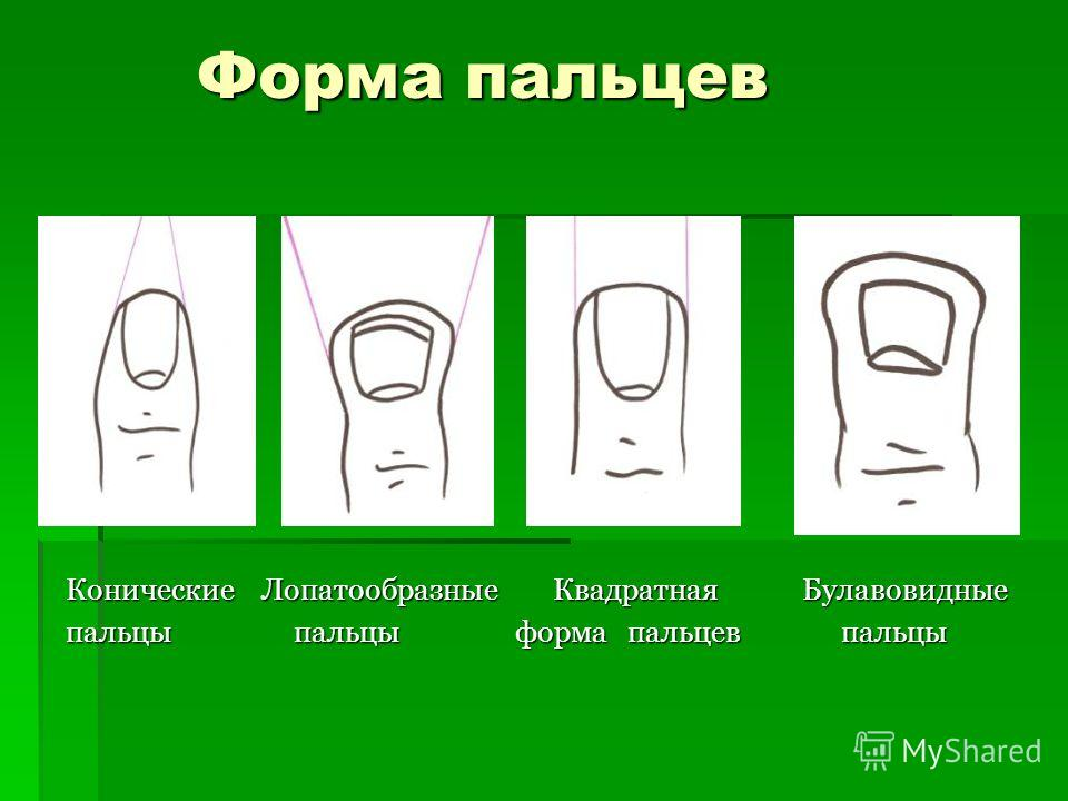 Форма пальцев Конические Лопатообразные Квадратная Булавовидные пальцы пальцы форма пальцев пальцы
