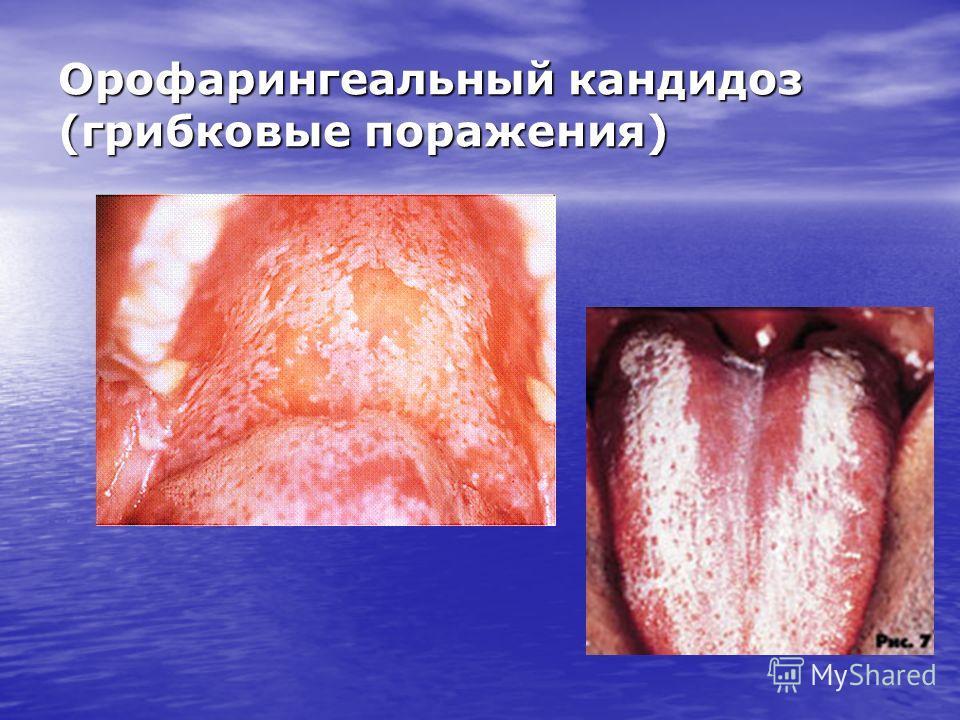 Орофарингеальный кандидоз (грибковые поражения)