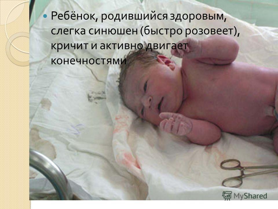 Ребёнок, родившийся здоровым, слегка синюшен ( быстро розовеет ), кричит и активно двигает конечностями