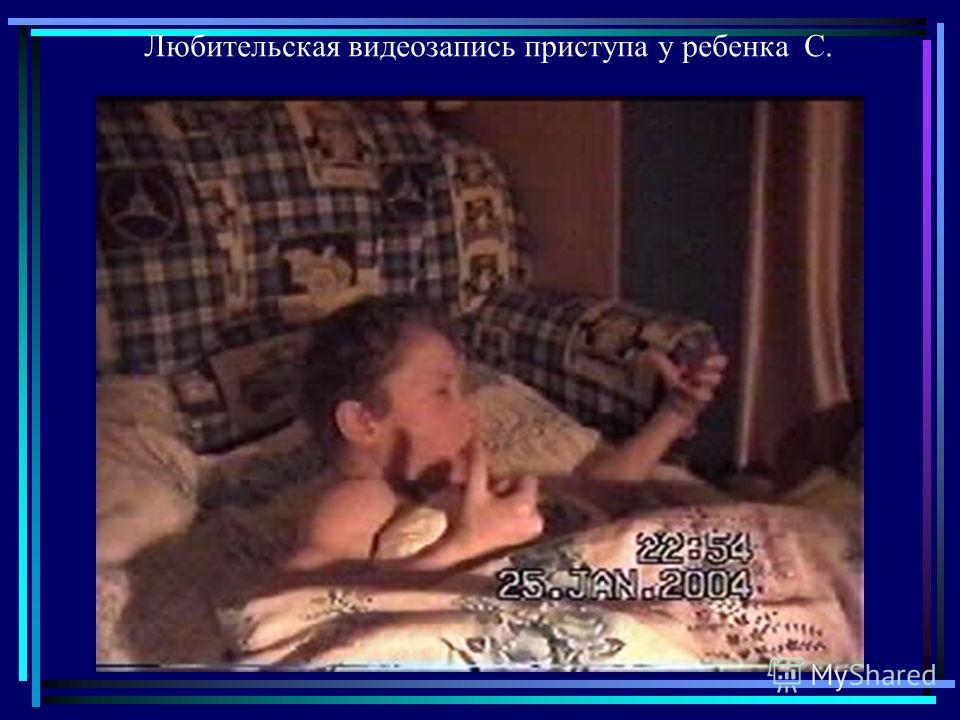 Любительская видеозапись приступа у ребенка С.