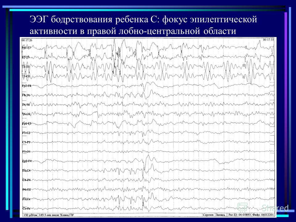 ЭЭГ бодрствования ребенка С: фокус эпилептической активности в правой лобно-центральной области