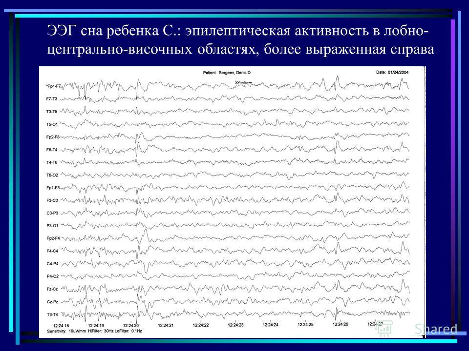 ЭЭГ сна ребенка С.: эпилептическая активность в лобно- центрально-височных областях, более выраженная справа