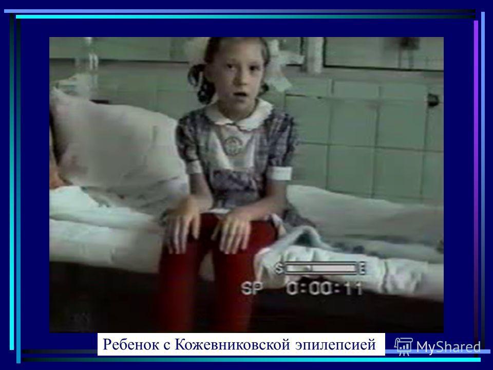 Ребенок с Кожевниковской эпилепсией