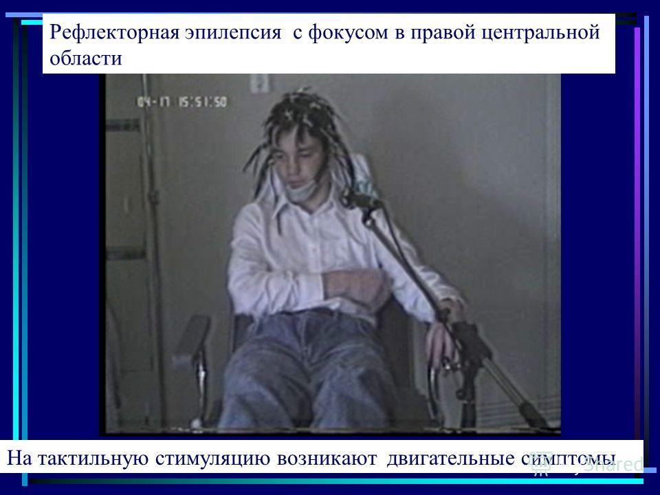Рефлекторная эпилепсия с фокусом в правой центральной области На тактильную стимуляцию возникают двигательные симптомы