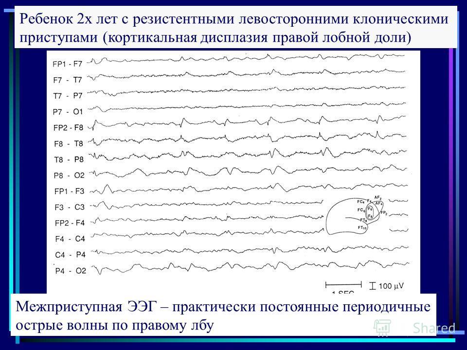 Ребенок 2х лет с резистентными левосторонними клоническими приступами (кортикальная дисплазия правой лобной доли) Межприступная ЭЭГ – практически постоянные периодичные острые волны по правому лбу