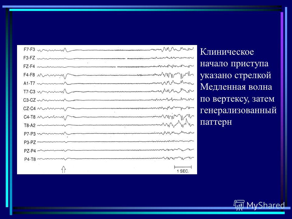 Клиническое начало приступа указано стрелкой Медленная волна по вертексу, затем генерализованный паттерн