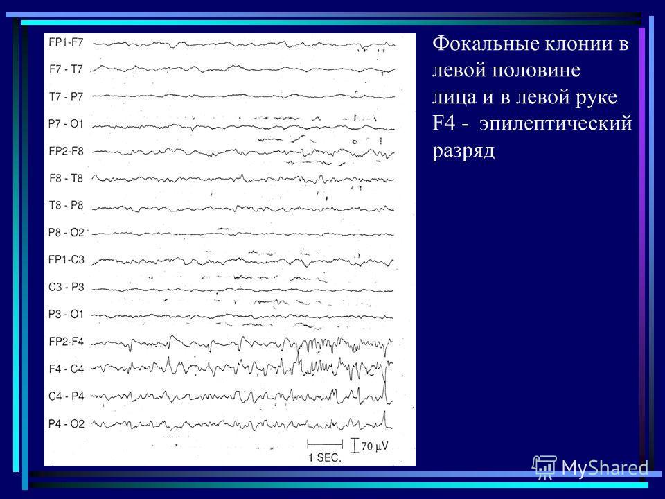 Фокальные клонии в левой половине лица и в левой руке F4 - эпилептический разряд