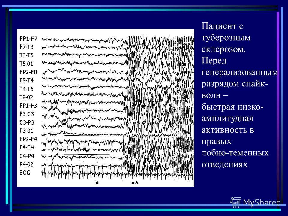 Пациент с туберозным склерозом. Перед генерализованным разрядом спайк- волн – быстрая низко- амплитудная активность в правых лобно-теменных отведениях