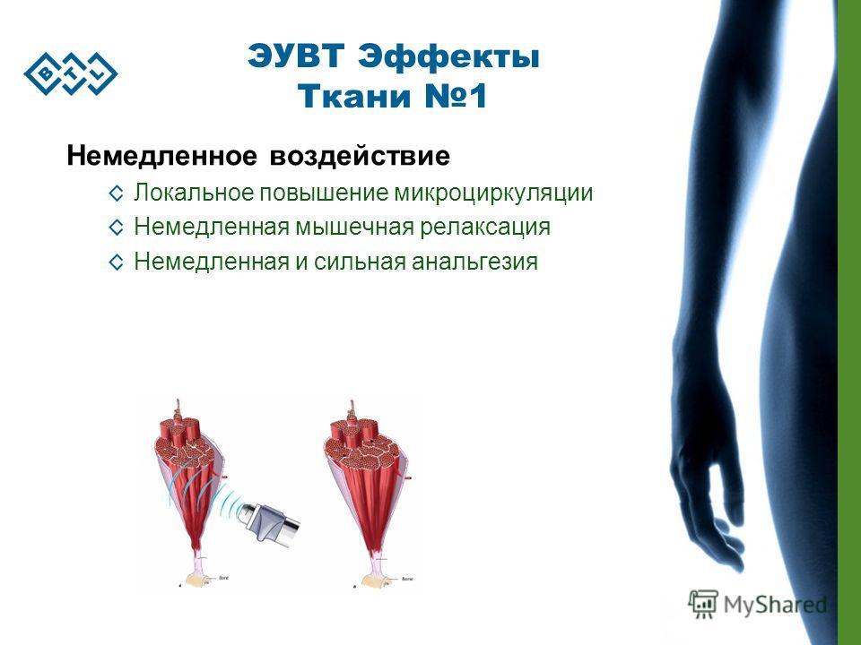Немедленное воздействие Локальное повышение микроциркуляции Немедленная мышечная релаксация Немедленная и сильная анальгезия ЭУВТ Эффекты Ткани 1