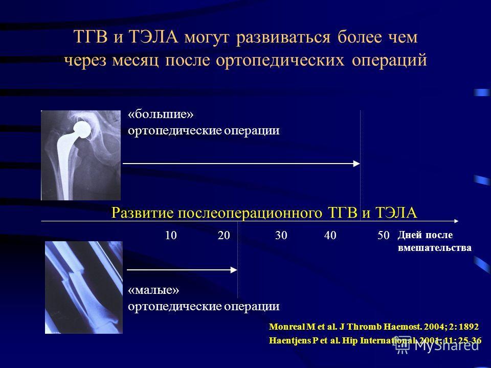 ТГВ и ТЭЛА могут развиваться более чем через месяц после ортопедических операций Дней после вмешательства 1020304050 Развитие послеоперационного ТГВ и ТЭЛА «малые» ортопедические операции «большие» ортопедические операции Monreal M et al. J Thromb Ha