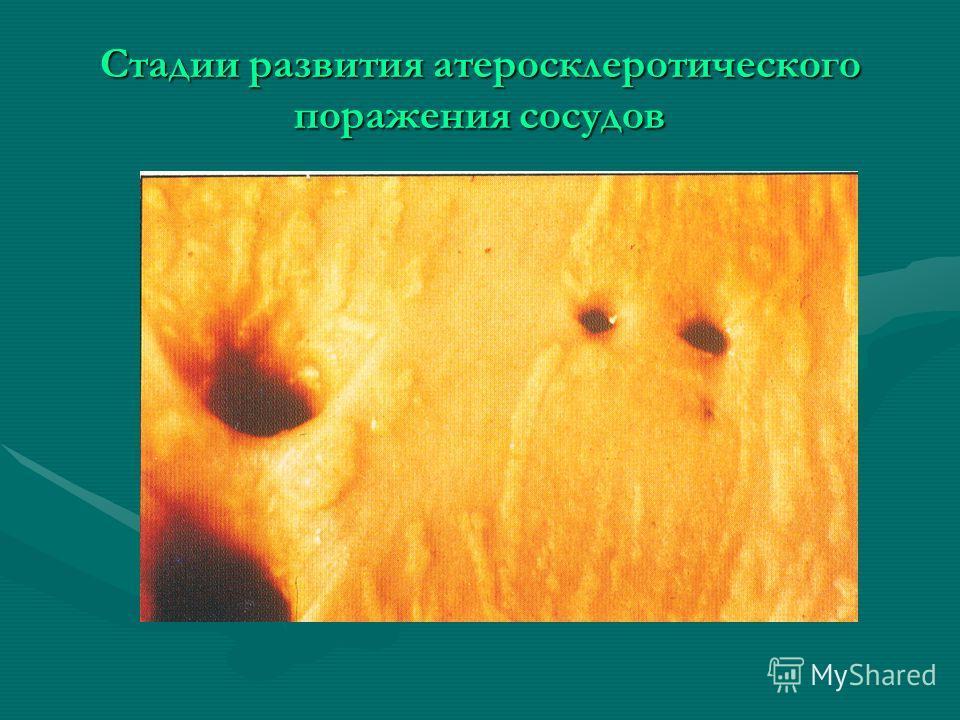 Стадии развития атеросклеротического поражения сосудов