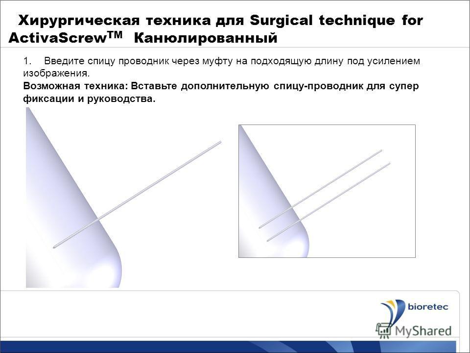 Хирургическая техника для Surgical technique for ActivaScrew TM Канюлированный 1.Введите спицу проводник через муфту на подходящую длину под усилением изображения. Возможная техника: Вставьте дополнительную спицу-проводник для супер фиксации и руково