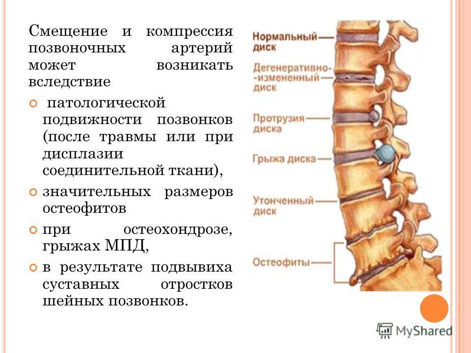 Смещение и компрессия позвоночных артерий может возникать вследствие патологической подвижности позвонков (после травмы или при дисплазии соединительной ткани), значительных размеров остеофитов при остеохондрозе, грыжах МПД, в результате подвывиха су