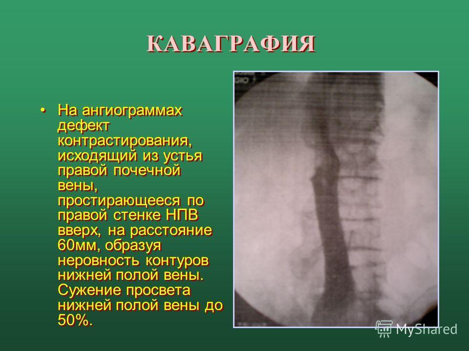КАВАГРАФИЯ На ангиограммах дефект контрастирования, исходящий из устья правой почечной вены, простирающееся по правой стенке НПВ вверх, на расстояние 60мм, образуя неровность контуров нижней полой вены. Сужение просвета нижней полой вены до 50%.