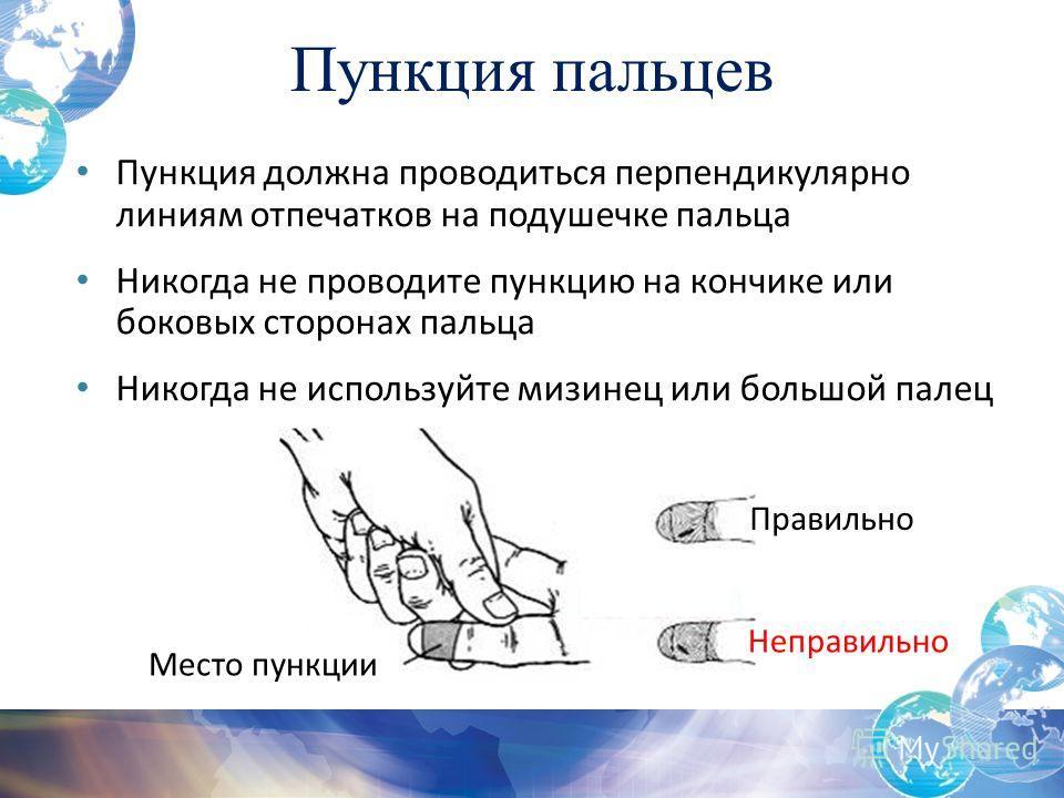 Пункция пальцев Пункция должна проводиться перпендикулярно линиям отпечатков на подушечке пальца Никогда не проводите пункцию на кончике или боковых сторонах пальца Никогда не используйте мизинец или большой палец Место пункции Правильно Неправильно