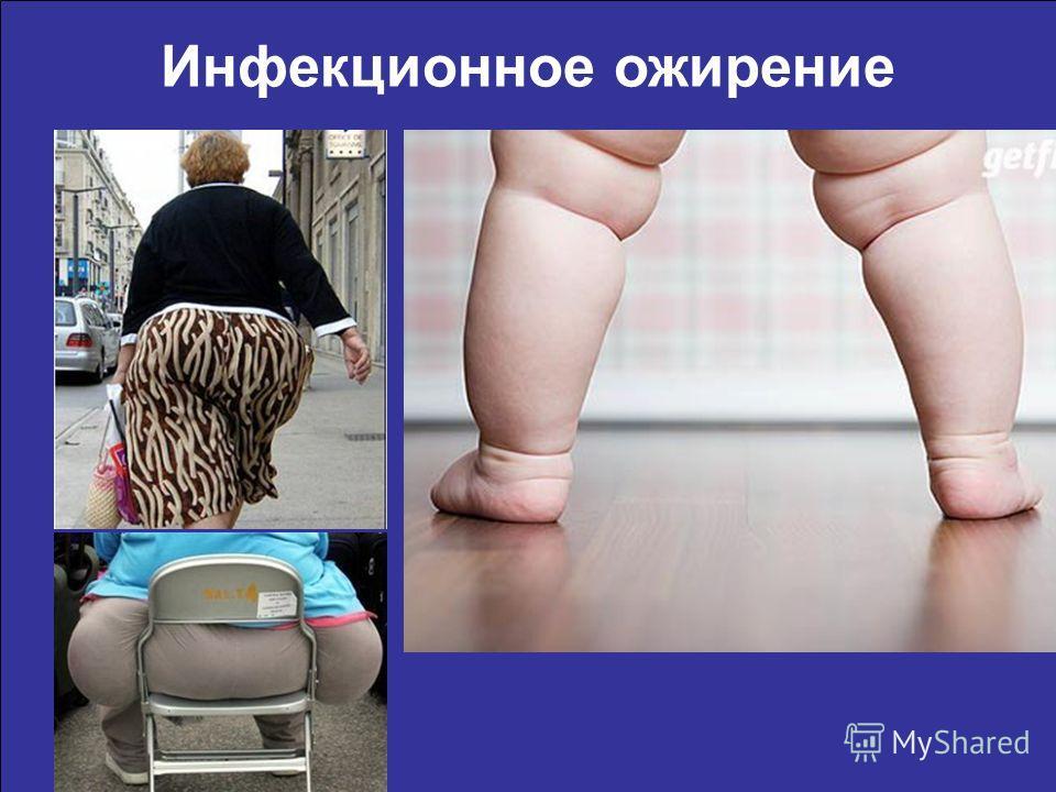 Инфекционное ожирение