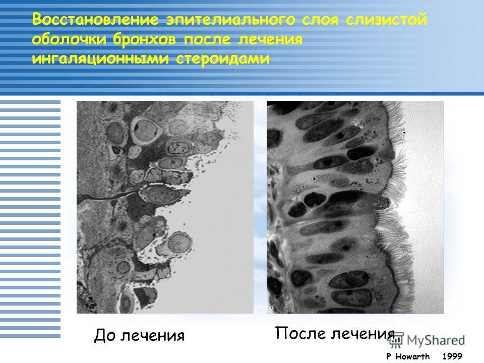 Восстановление эпителиального слоя слизистой оболочки бронхов после лечения ингаляционными стероидами P Howarth 1999 До лечения После лечения