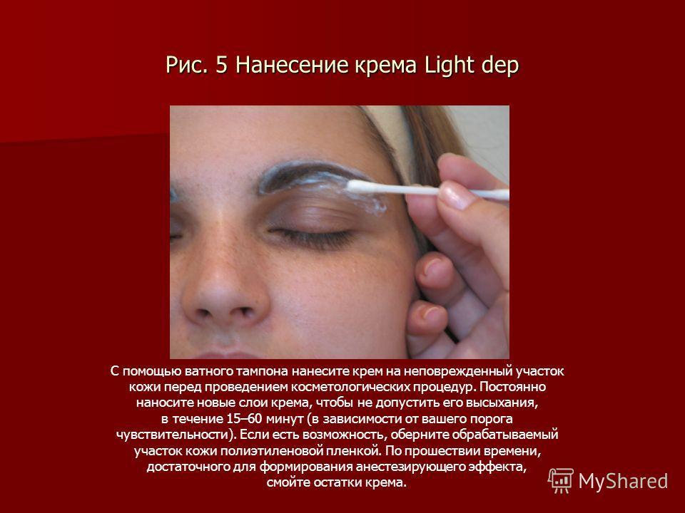 Рис. 5 Нанесение крема Light dep С помощью ватного тампона нанесите крем на неповрежденный участок кожи перед проведением косметологических процедур. Постоянно наносите новые слои крема, чтобы не допустить его высыхания, в течение 15–60 минут (в зави
