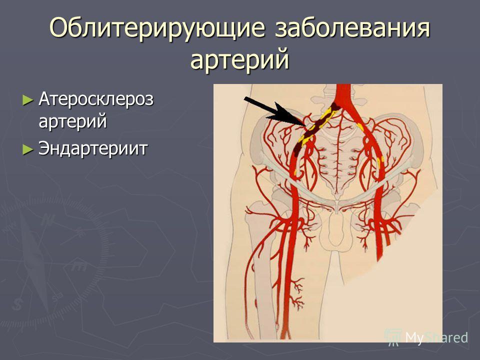 Облитерирующие заболевания артерий Атеросклероз артерий Атеросклероз артерий Эндартериит Эндартериит