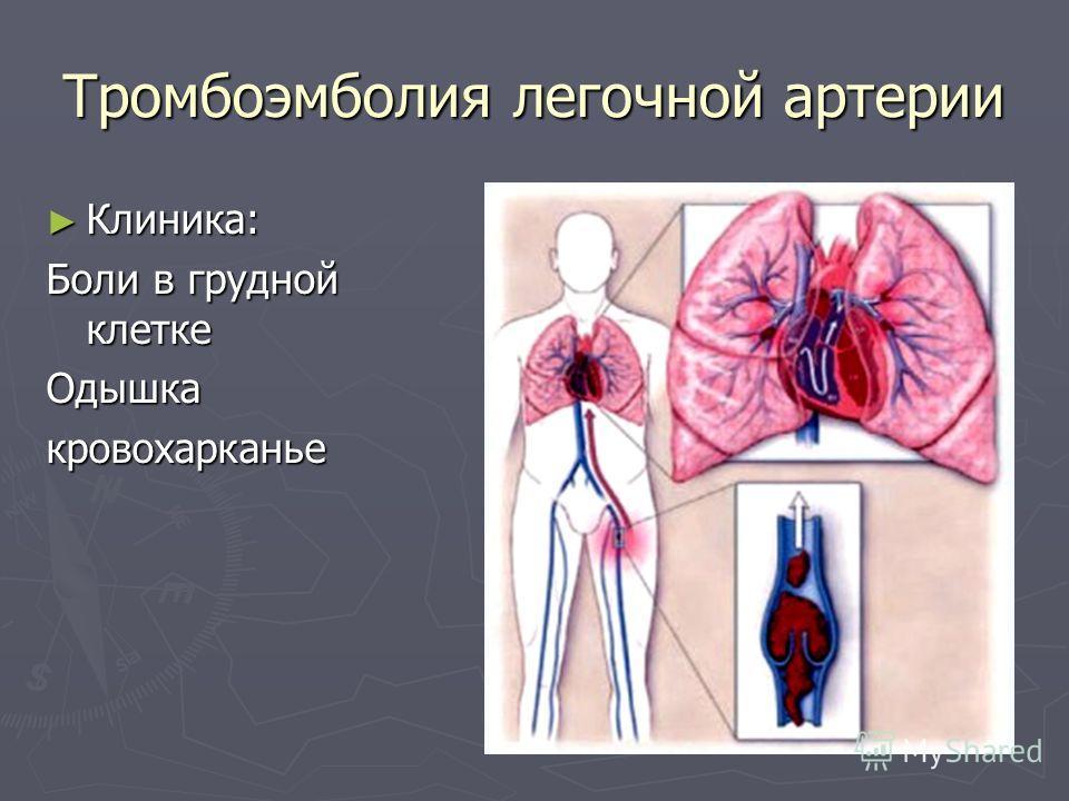 Тромбоэмболия легочной артерии Клиника: Клиника: Боли в грудной клетке Одышкакровохарканье